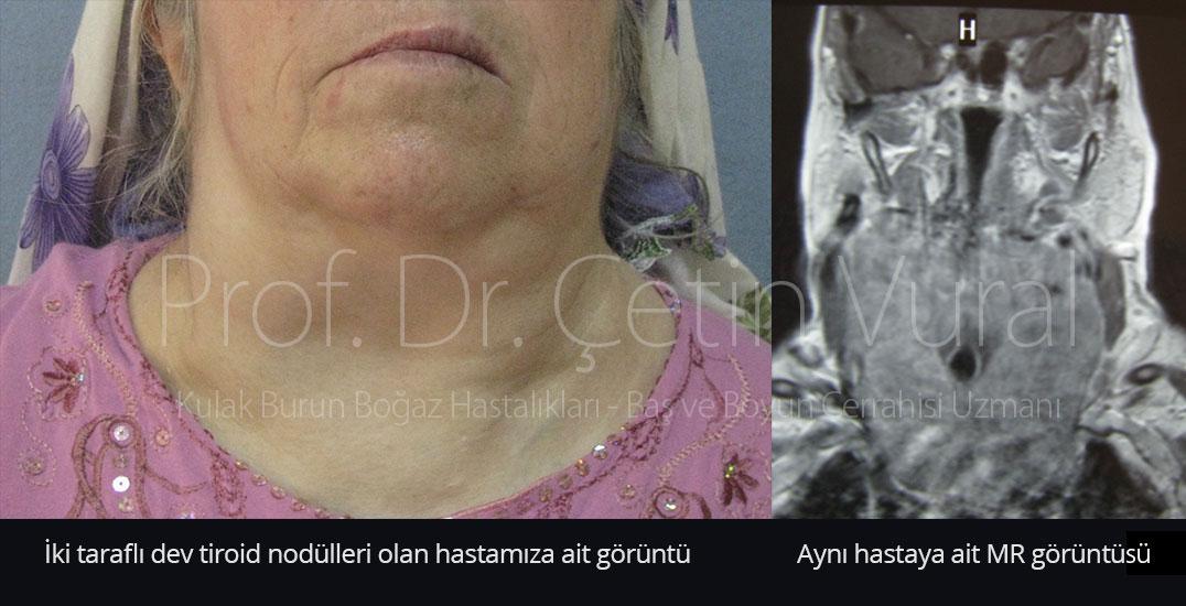_dev-tiroid-nodulu-2